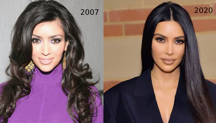 Kim K before surgery and after pic 1 - Interesting Facts I Bet You Never Knew About KIM KARDASHIAN || Award, Latest picture, Met Gala 2019